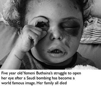 Yemen_bombed child