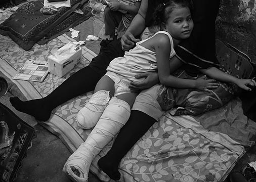 One legged girl bomb victim in Yemen